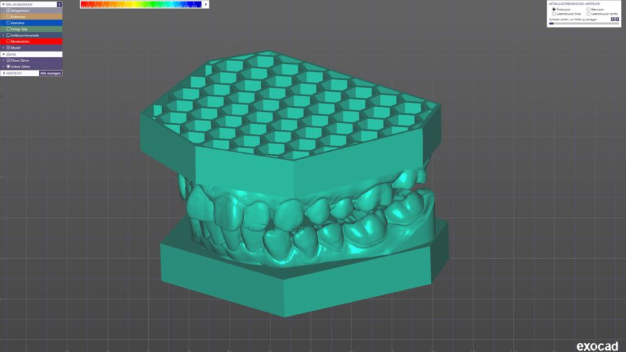 Orthodontic honeycomb baseplates for modelcreator / closed and drained